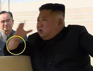 جای سوزن روی دست رهبر کره شمالی