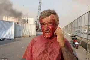 مصدومان خونین انفجار بیروت